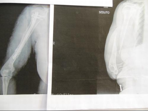 ベネチアで右上腕部を複雑骨折